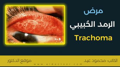 الرمد الحُبيبي (التراكوما - Trachoma) | الأسباب والعلاج